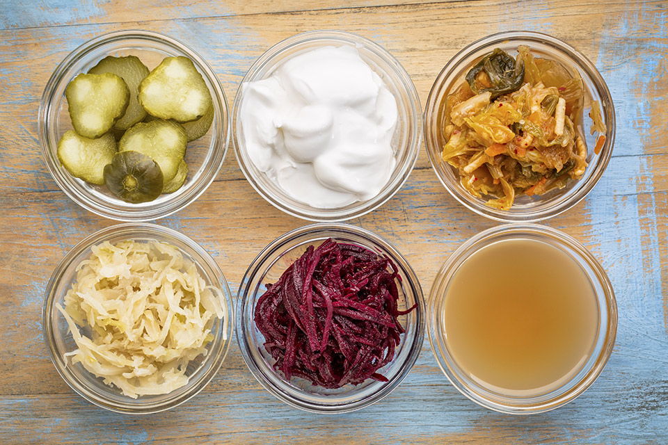 Picture of pickles, sauerkraut, yogurt and other fermented foods